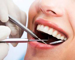 Dental Cleanings & Exams 3 | Dores Dental - East Longmeadow, MA