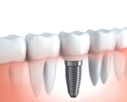 Dental Implants 2 | Dores Dental - East Longmeadow, MA