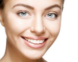 Gum Reshaping 2   Dores Dental - East Longmeadow, MA