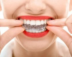 Invisalign Thumbnail 2 at Dores Dental | East Longmeadow, MA