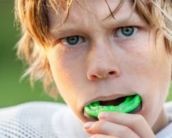 Mouthguards 1 | Dores Dental - East Longmeadow, MA