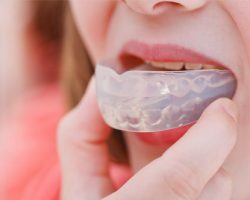 Mouthguards 2 | Dores Dental - East Longmeadow, MA