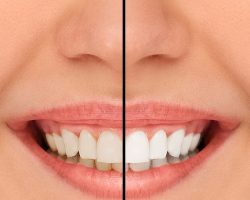 Before and After Teeth Whitening | Dores Dental - Longmeadow, MA Dentist