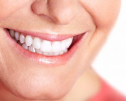 Teeth Whitening 1 | Dores Dental - East Longmeadow, MA