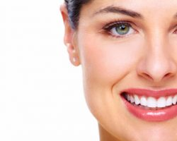 Teeth Whitening 2 | Dores Dental - East Longmeadow, MA