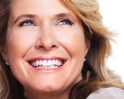 Dental Veneers 1 | Dores Dental - East Longmeadow, MA