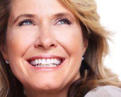Dental Veneers 1   Dores Dental - East Longmeadow, MA